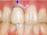 オールセラミックなら歯と歯ぐきの境目がとても綺麗