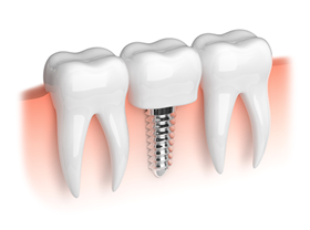 歯周病とインプラント治療