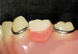 入れ歯で治療した場合