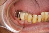 下奥歯に入れていた部分入れ歯を、インプラントにしたケース