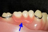 下奥歯3本を失い、入れ歯が痛くて合わなかったケース
