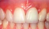 前歯を失ったケース