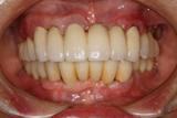 健康な歯を削らないで治したいということでインプラントで治療したケース