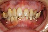 入れ歯の金具が目立って嫌なので、目立たないようにしたいというケース