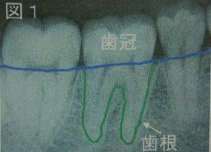 正常な歯のレントゲン