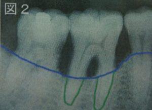 歯周病の歯のレントゲン